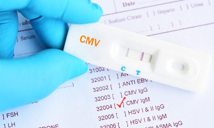 Cytomegalovirus prenatal infection