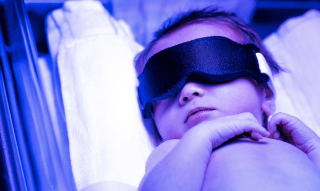 blindfolded baby, jaundice