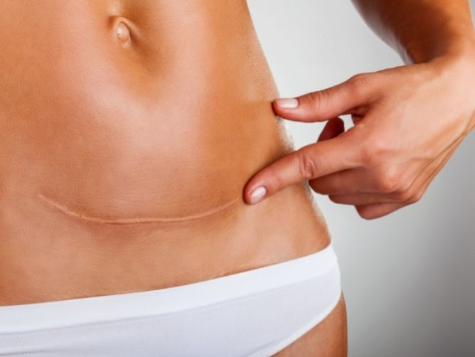 Why Caesarean Section by Dr. Christopher Chong